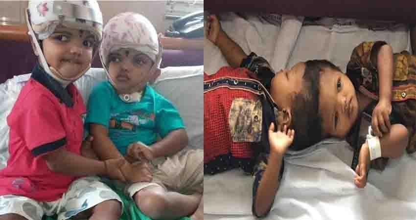 jagga and ballia associated with head healthy after complex surgery aiims discharges
