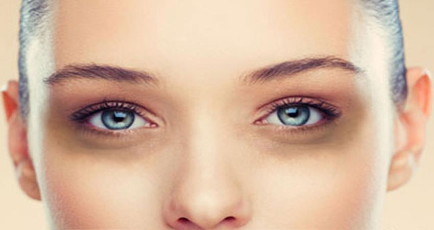 dark-circles-problems-use-this-tips