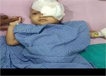 डेढ़ साल की बच्ची के सिर के अंदर घुसा था पत्थर, AIIMS के डॉक्टरों ने ऐसे बचाई जान