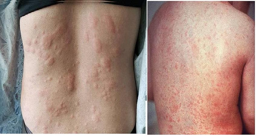 appearance on the skin of corona patients affect the virus