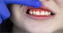 सामने आया कोरोना का नया लक्षण! दांतों में हो रही ऐसी दिक्कत तो हो जाएं सतर्क