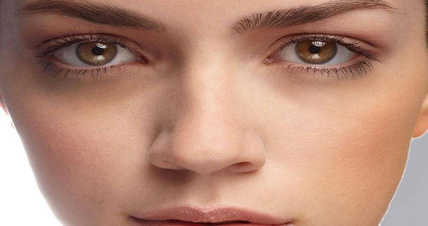 these-are-the-home-remedies-to-keep-away-from-dark-circles