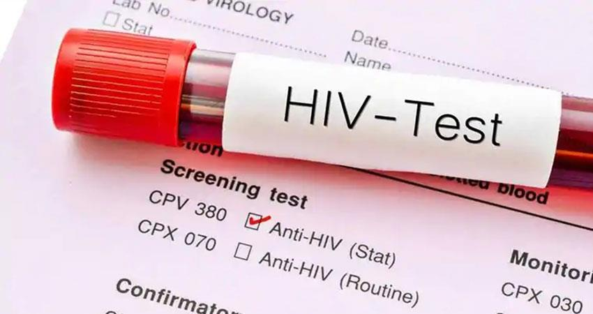 heart attack due to hiv infection