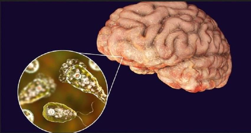 amoeba-infection-found-in-florida-us-can-destroy-human-brain-prsgnt