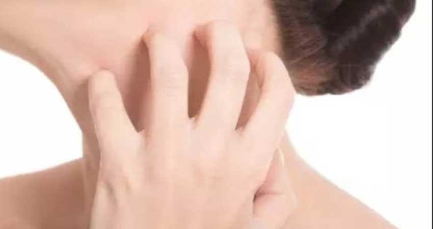 Skin rashes 3 home remedy Tips PRAGNT