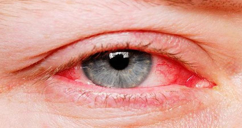 these home remedies will help you to get away from dry eye syndrome