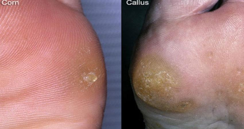 home-remedies-for-remove-corns-and-calluses-read-the-story-in-hindi