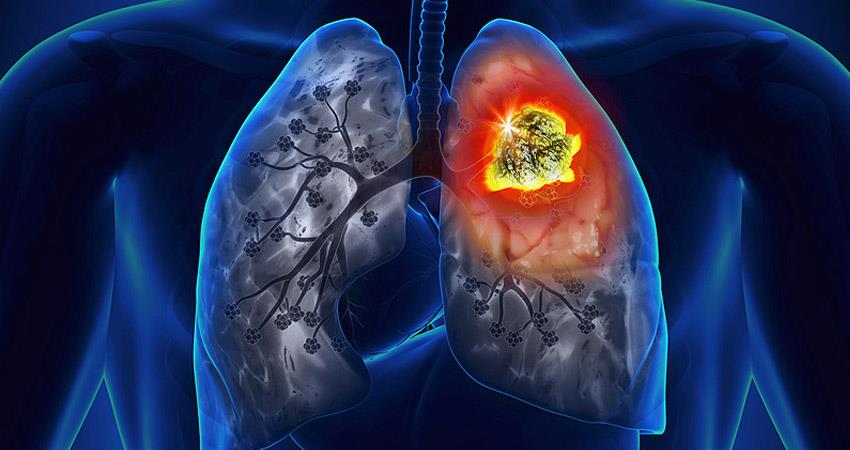 symptoms-of-lung-cancer