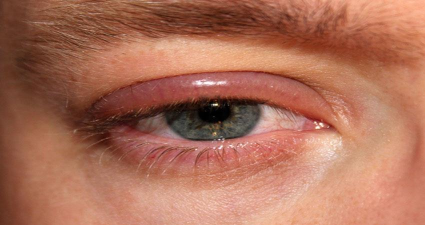 easily find out the disease of dryness in the eyes