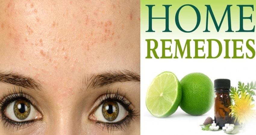 these-home-remedies-will-help-you-to-get-rid-of-from-forehead-pimples
